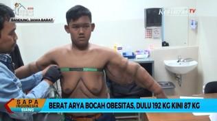 berat-badan-turun-lebih-dari-100-kg-arya-permana-akan-operasi-plastik-untuk-buang-kulit-gelambir